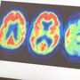 Alzheimer's study reveals costly mistake