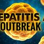 Hepatitis A vaccinations to be offered for food service, hospitality workers