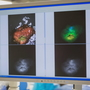 Breast cancer in a new light: Injection makes cancer cells glow, easier for doctors to see