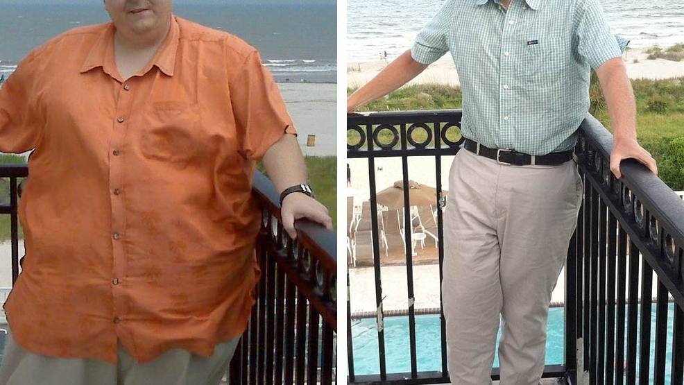 Lowcountry Man Shares His 400-pound Weight-loss Secrets